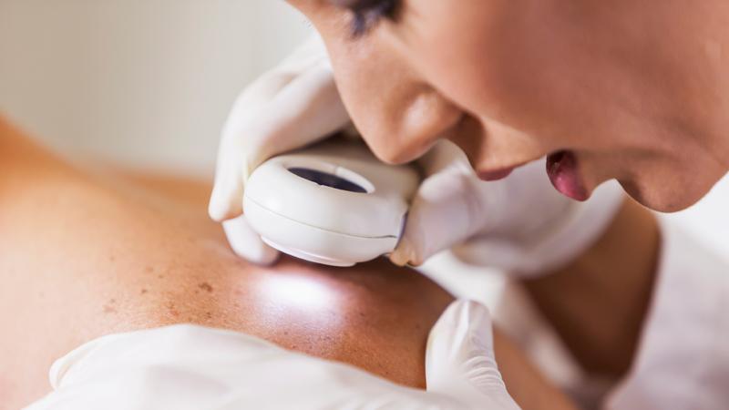 dermatology starting out