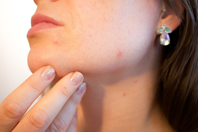hormonal treatment for acne