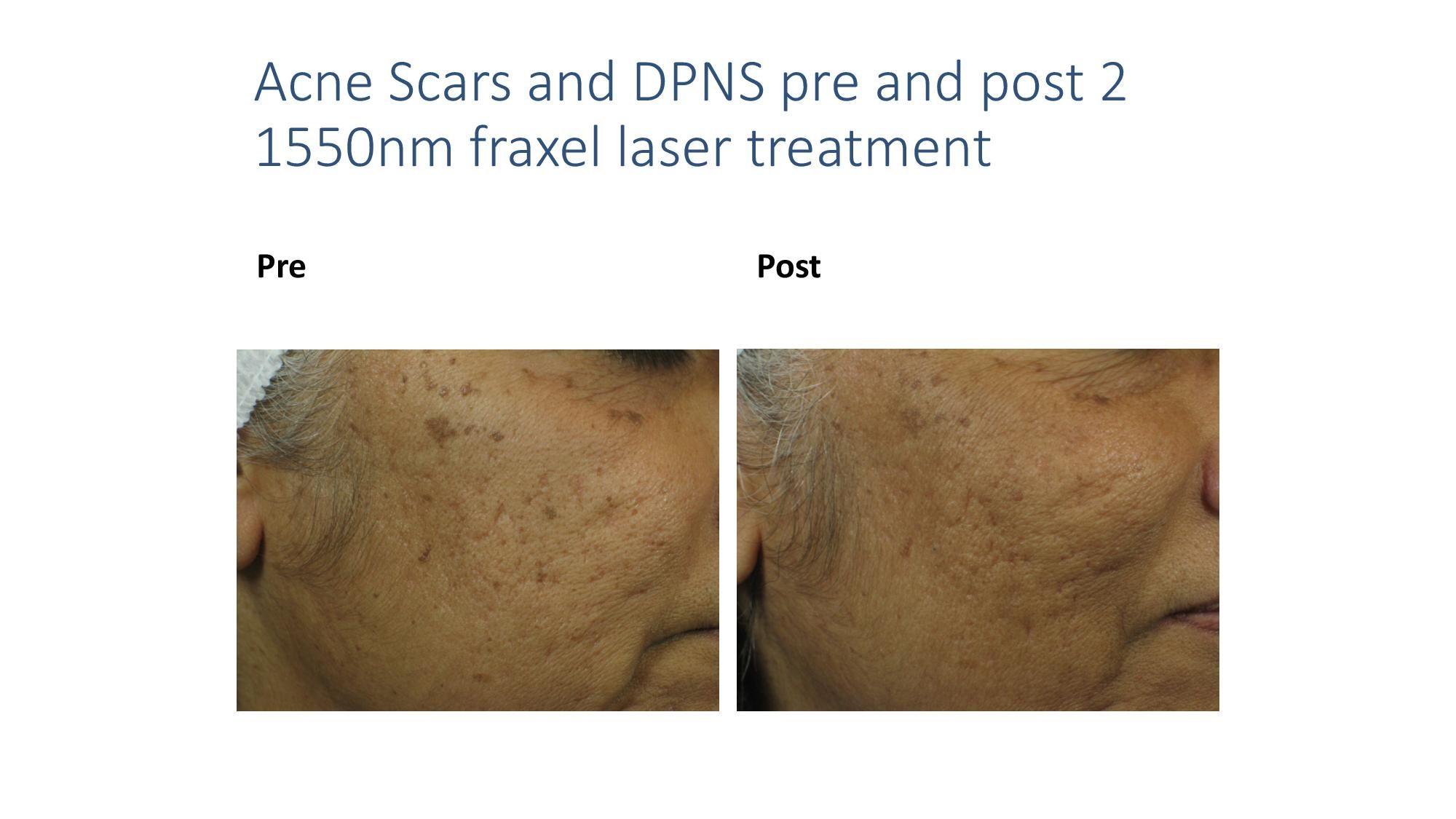 fractional laser photo
