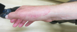 Fungal Infection – Tinea Manuum