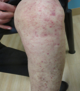 Fungal Infection – Tinea Pedis