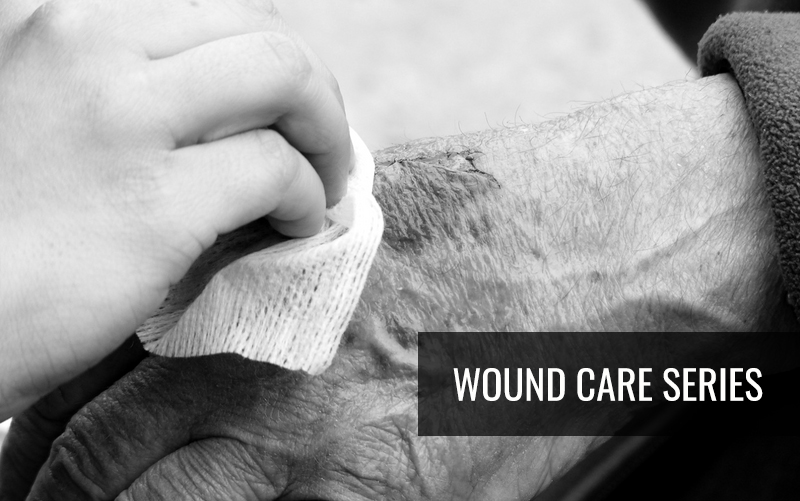 Wound-Care-Series questions