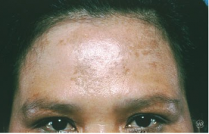 Pop Quiz Melasma