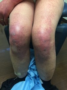 Violaceous Erythema