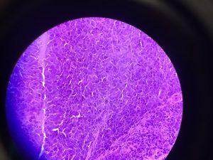 Nodule Biopsy