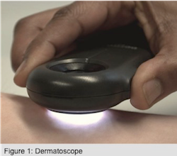 Dermoscope