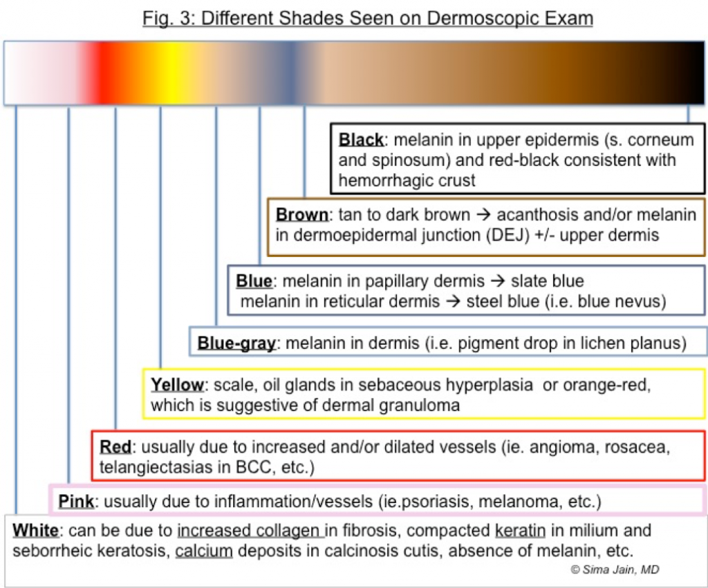 Different Shades Seen on Dermoscopic Exam