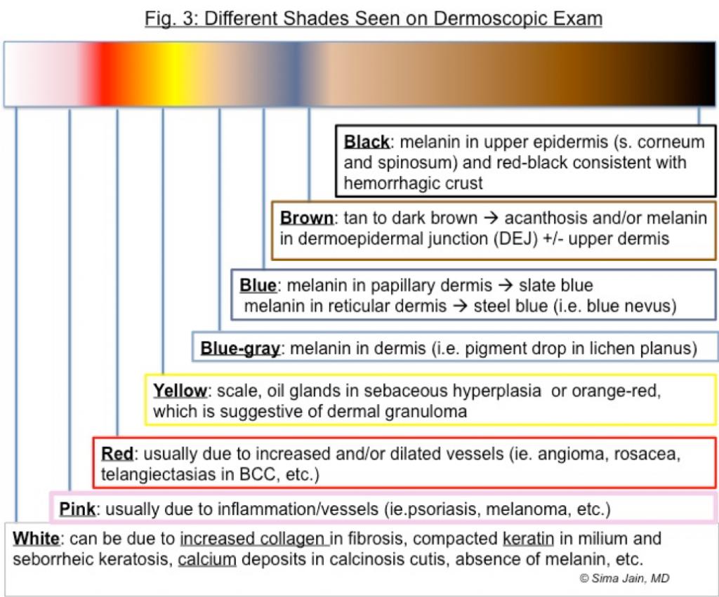 Different Shades Seen on Dermoscopic Exam