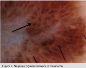 Negative pigment network in melanoma