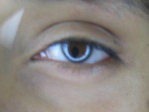 ocular features
