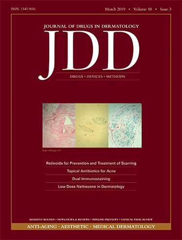 JDD March issue