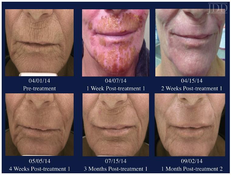 Resurfacing pre and post treatment