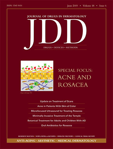JDD June Issue