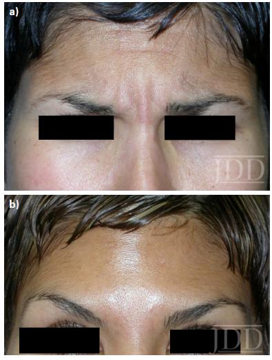 botulinum toxin A treated brow.