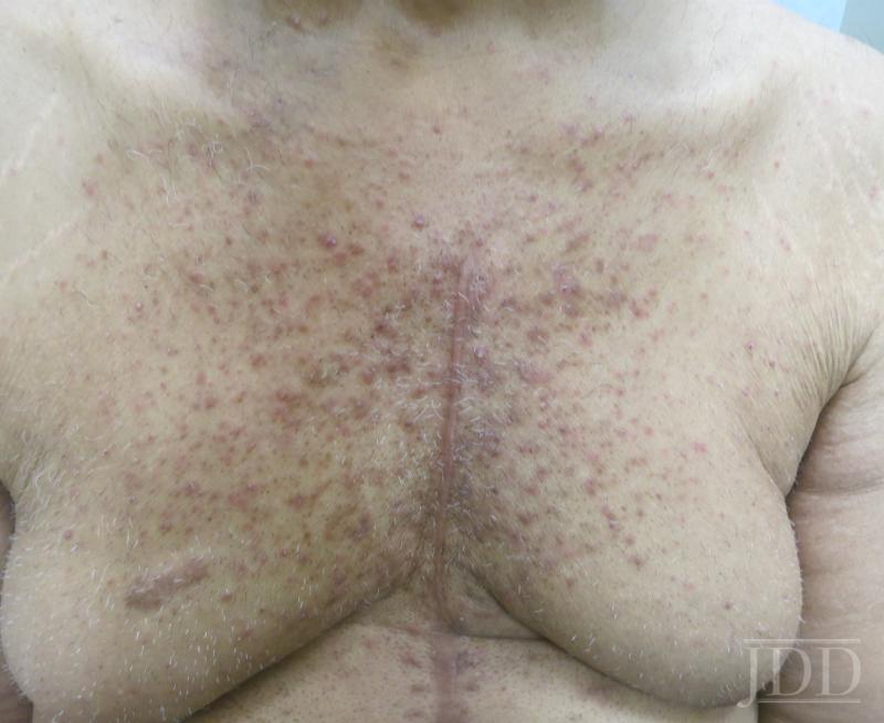 pruritic skin