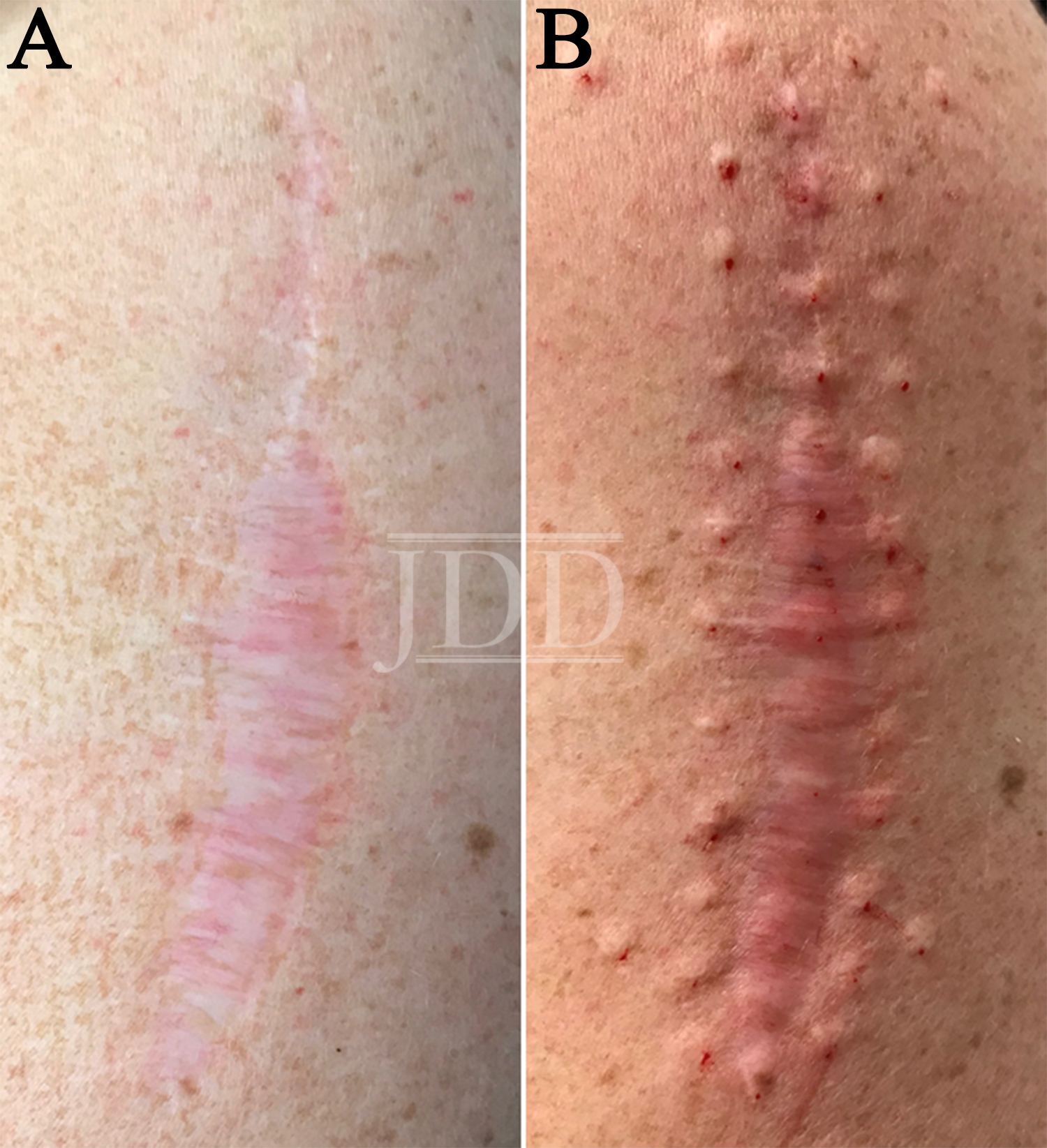 Botulinum Toxin for scar pain