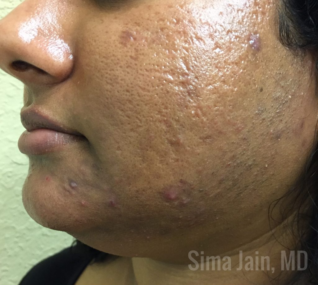 Part 2 Hormonal Acne Diagnostic Workup And Treatment Options Next Steps In Dermatology
