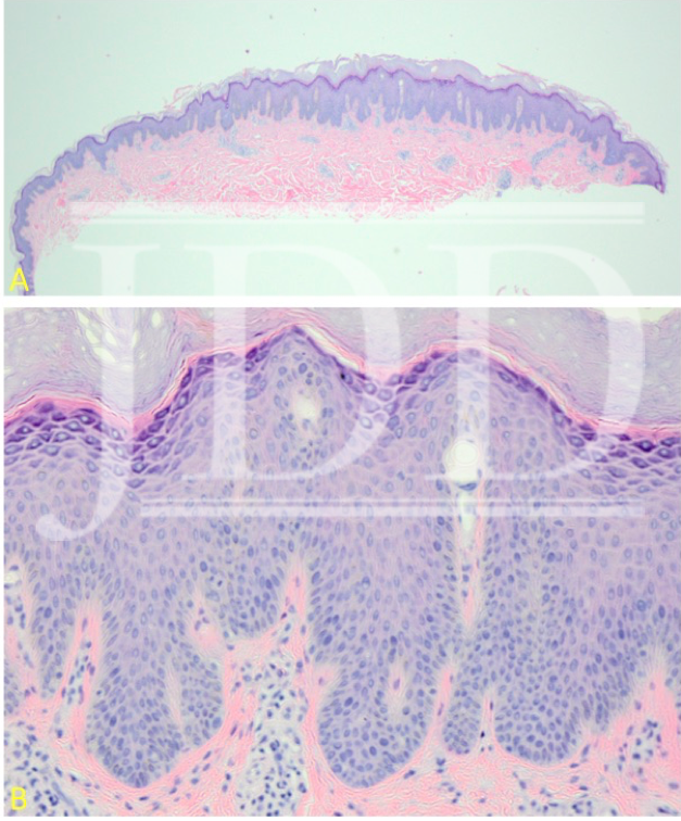 epidermal hyperplasia