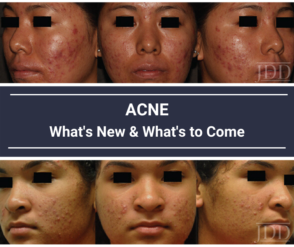 Acne What S New And What S To Come Next Steps In Dermatology