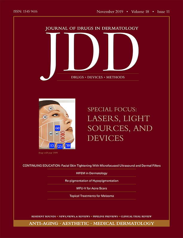 JDD November Lasers and Light Sources