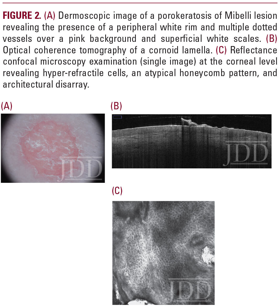 Dermoscopic image of a porokeratosis of Mibelli lesion