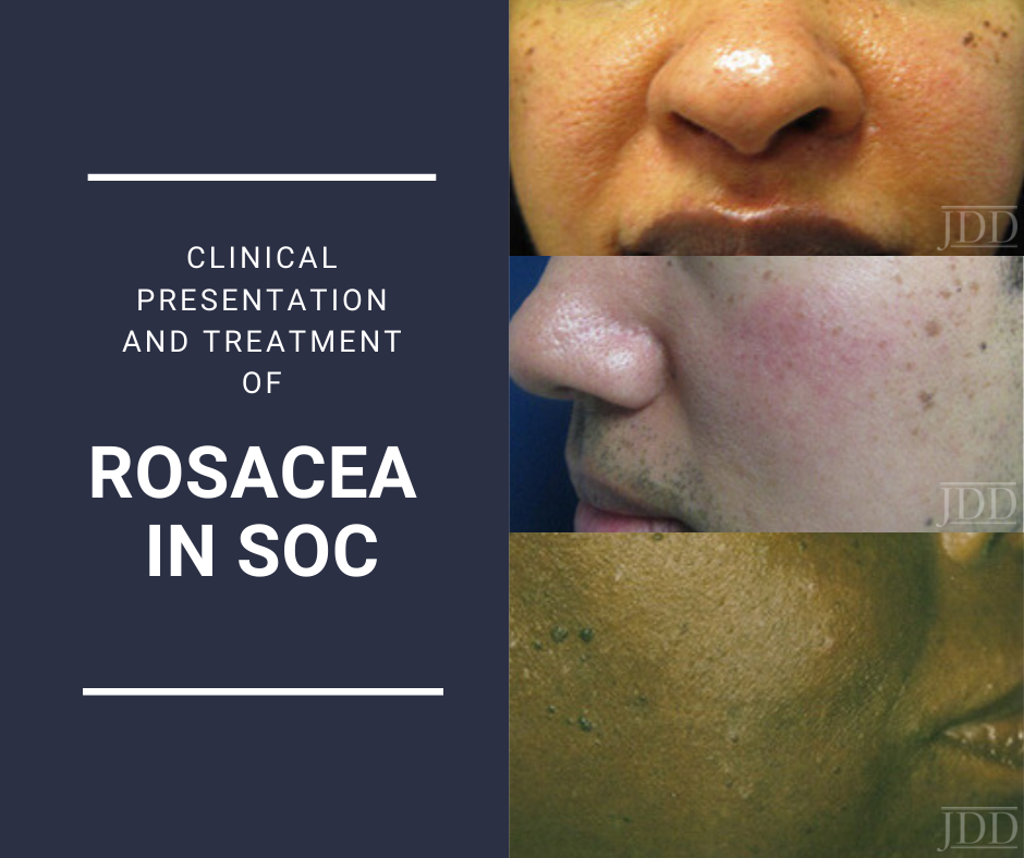 Rosacea in SOC