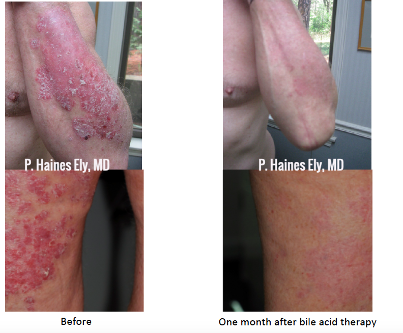 Before and after bile acid therapy