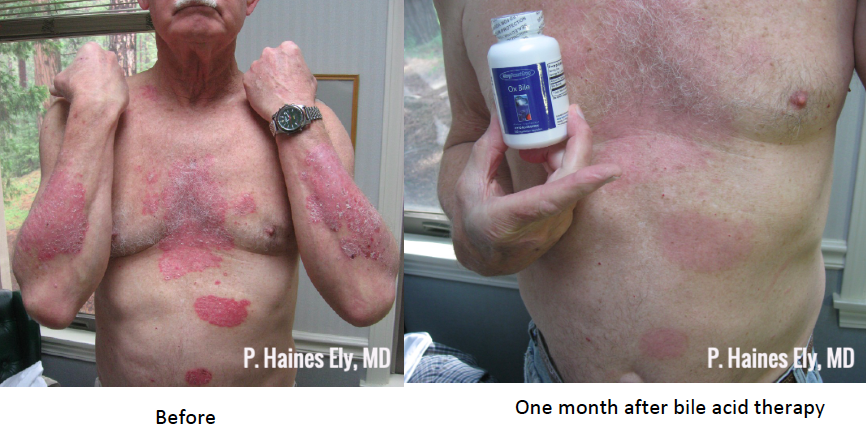 Before and after acid bile therapy 2