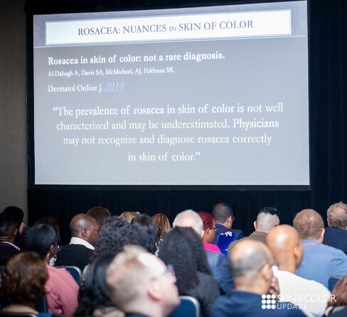 Rosacea in skin of color