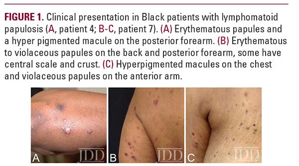 Lymphomatoid Papulosis