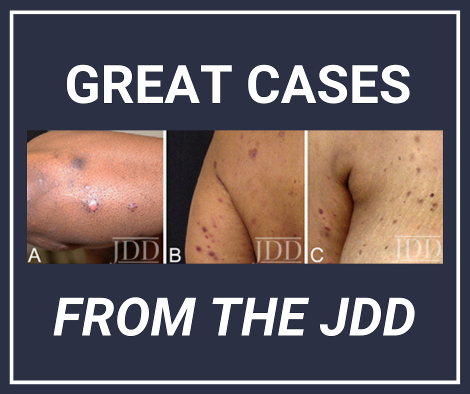JDD case report