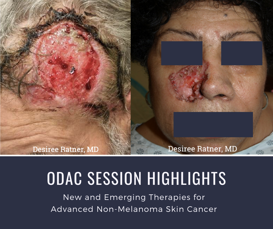 Advanced Non-Melanoma Skin Cancer