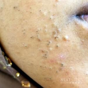 comedonal acne