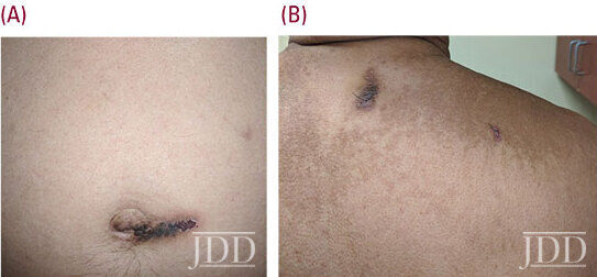 oval dark brown plaques located periumbilically and on the upper back