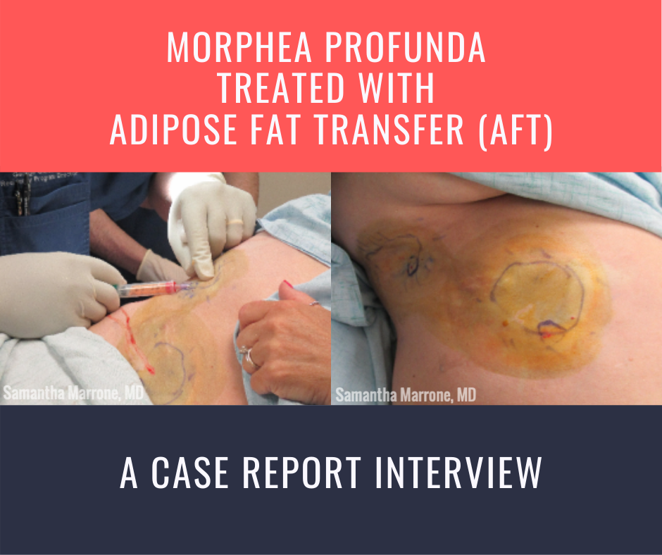 Morphea Profunda Treated with Adipose Fat Transfer (AFT)
