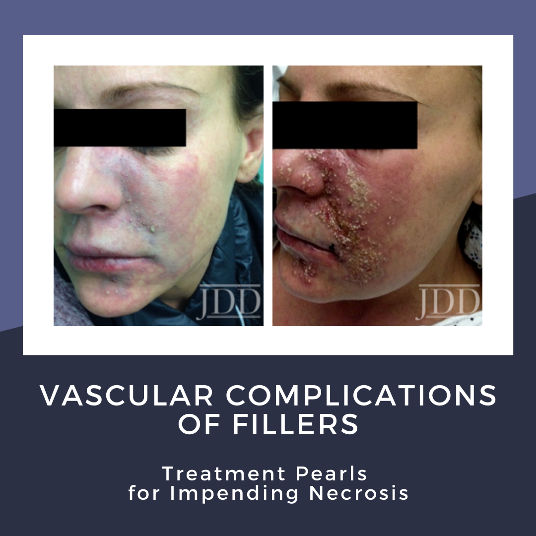 Vascular Complications of Filler