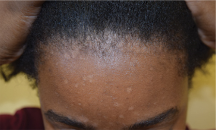 seborrheic dermatitis of the face and scalp