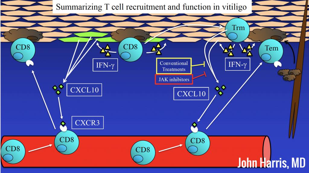 Summarizing T cell recruitment and function in vitiligo