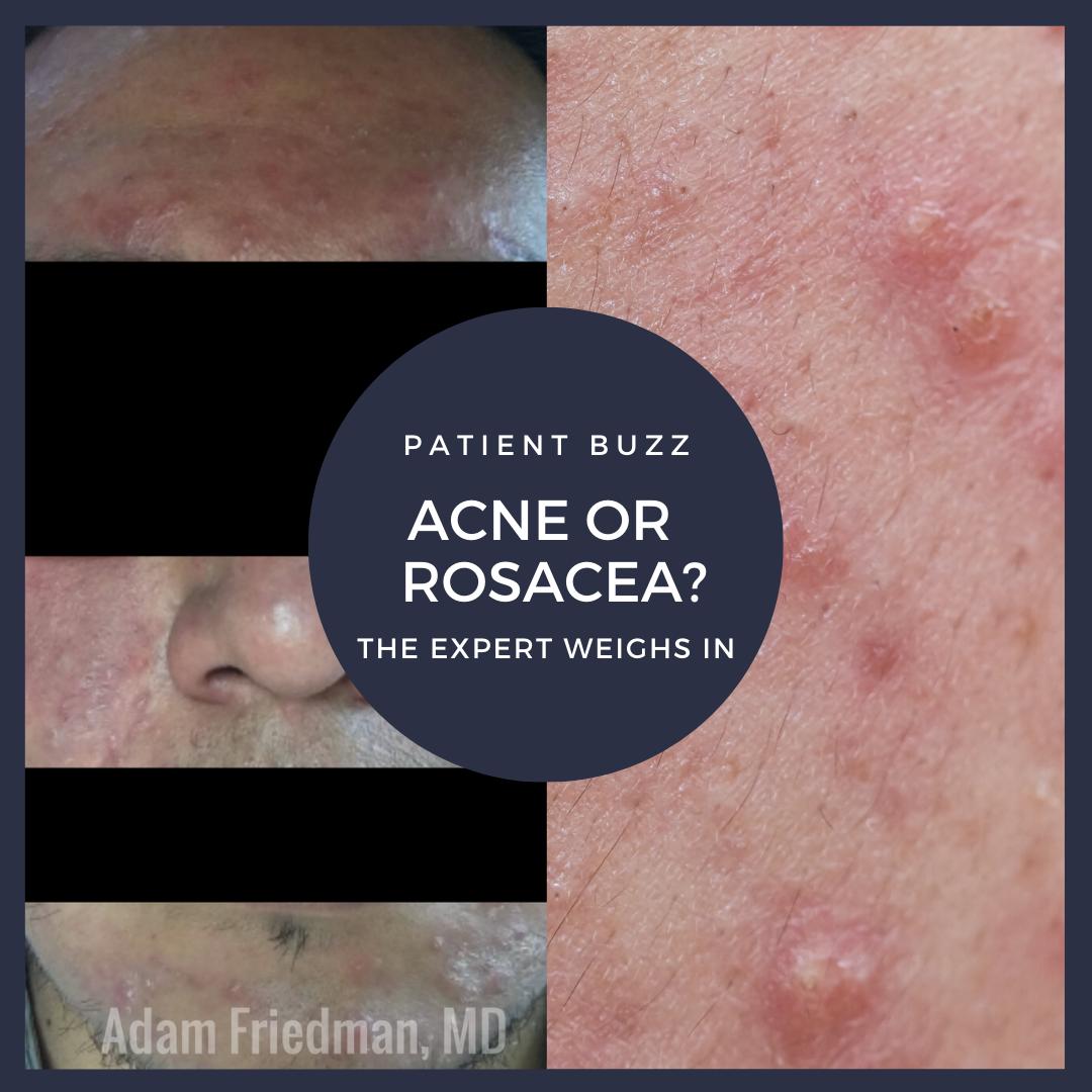 acne or papulopustular rosacea