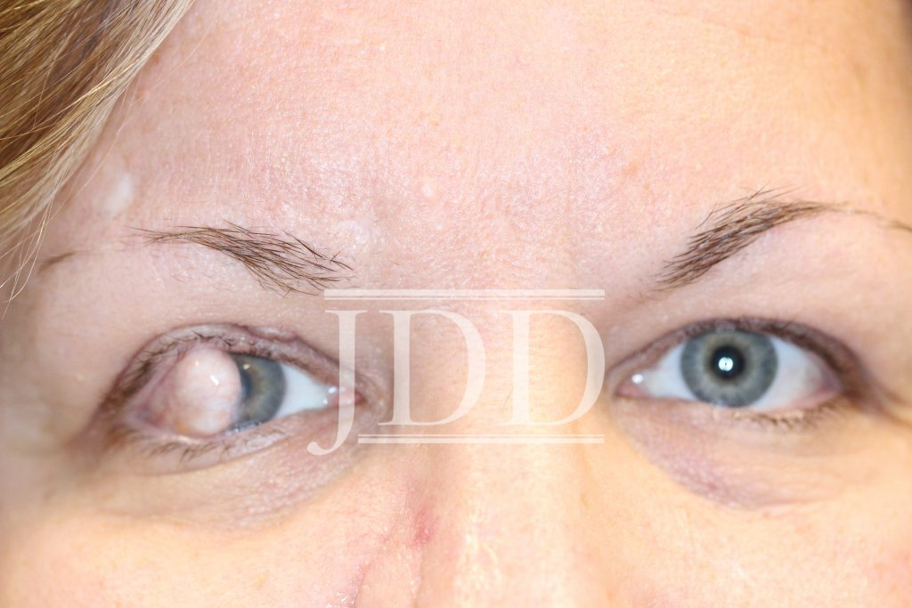 iew of bilateral eyes with ocular dermoid