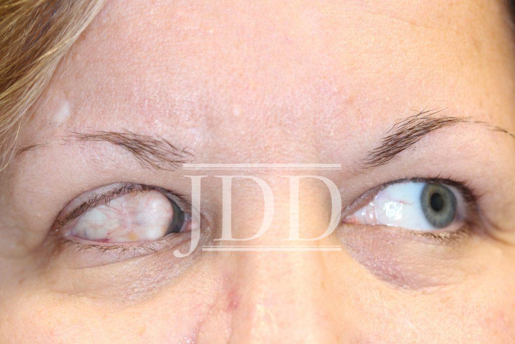 right eye showing ocular dermoid
