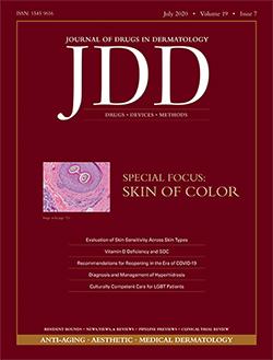 JDD July