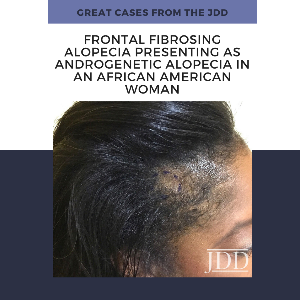 African American Woman with frontal fibrosis alopecia