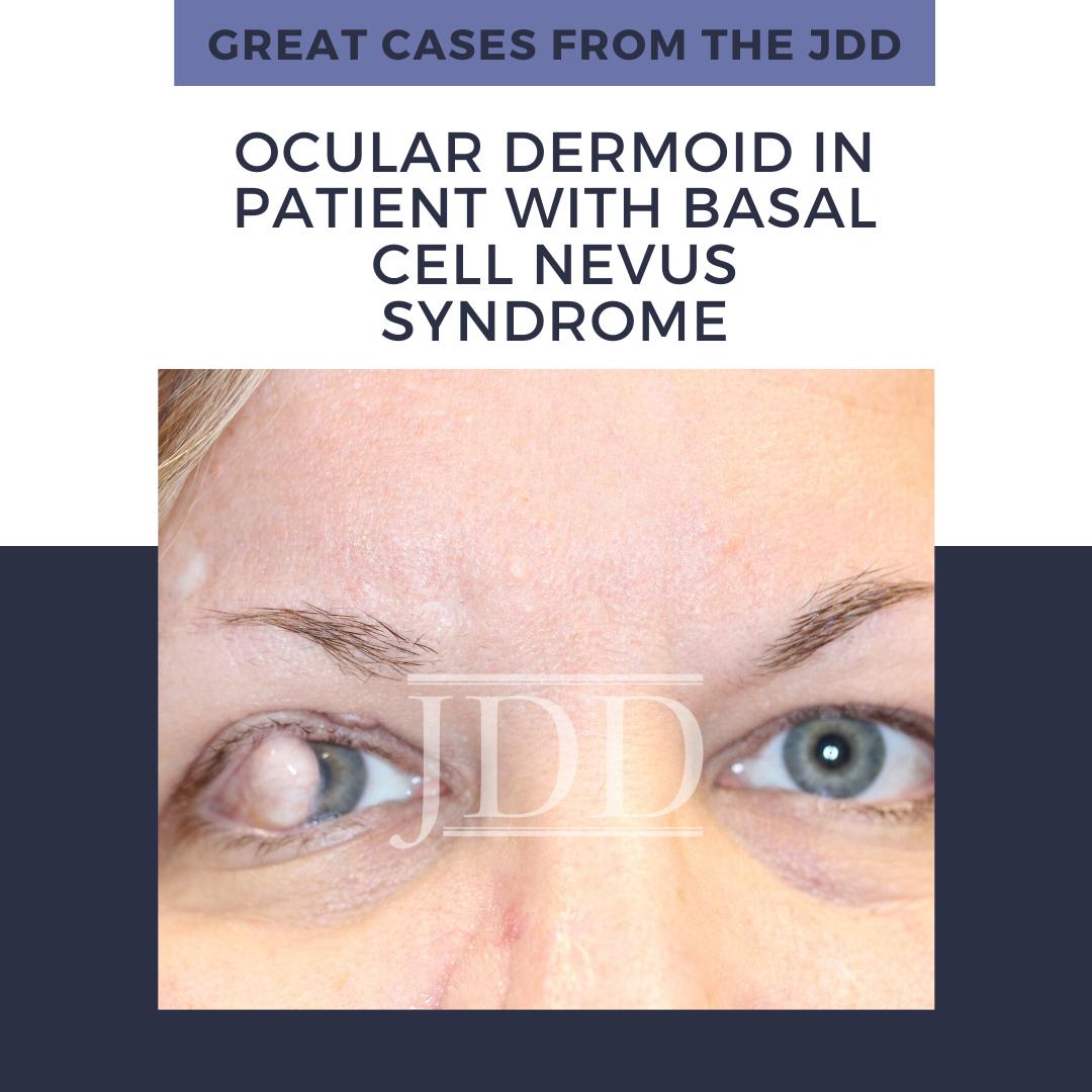 ocular dermoid