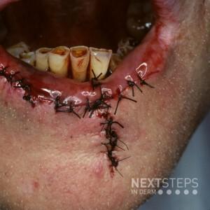 Inferior labial artery