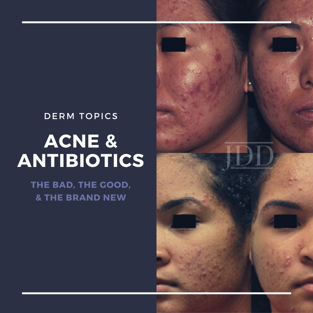 Acne & Antibiotics