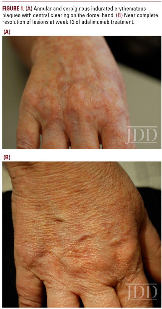 Drug Induced Lupus