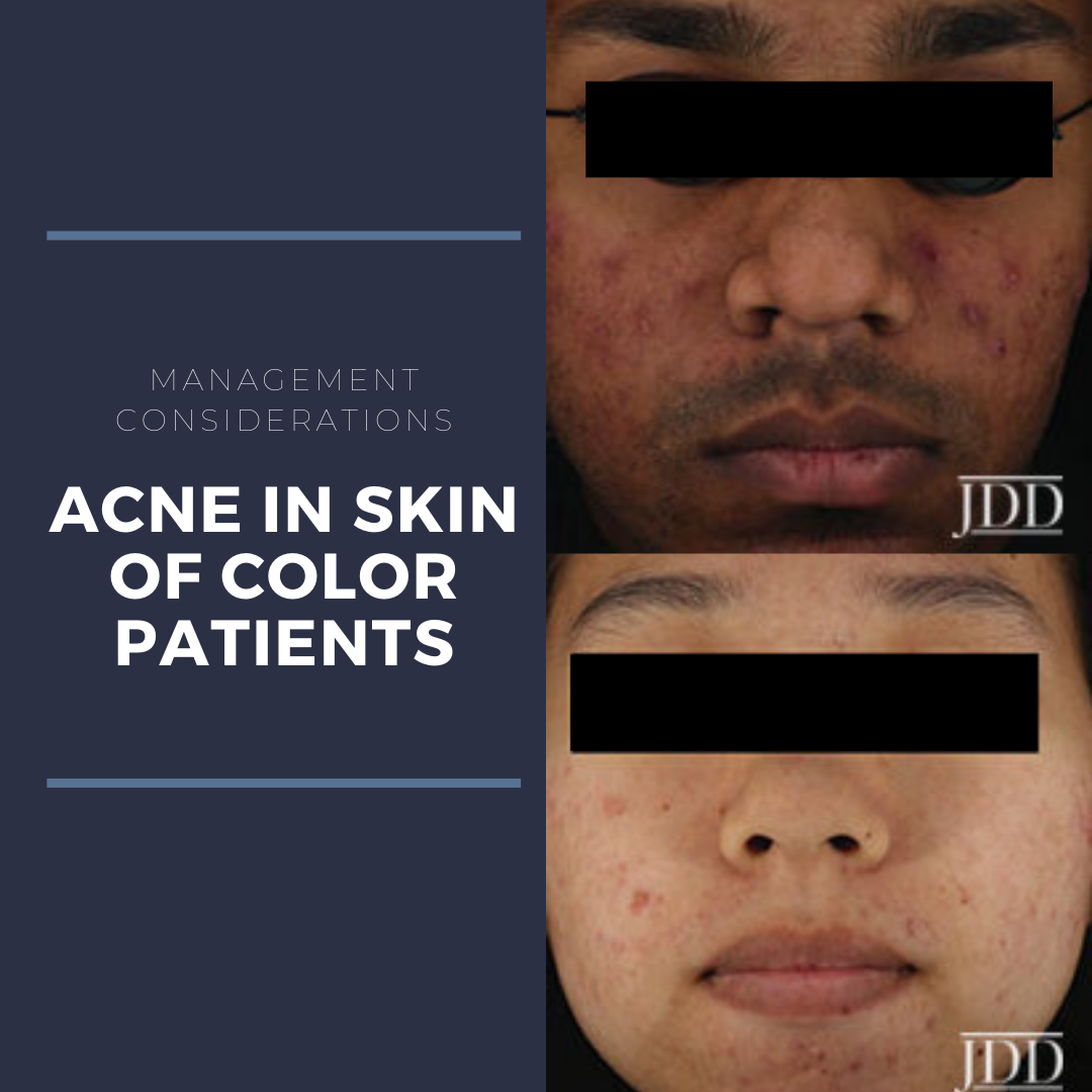Acne in Skin of color patients