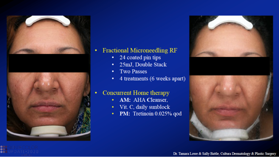 Fractional micro needling