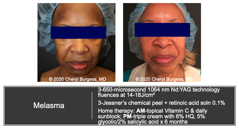 Melasma Treatment Before & After